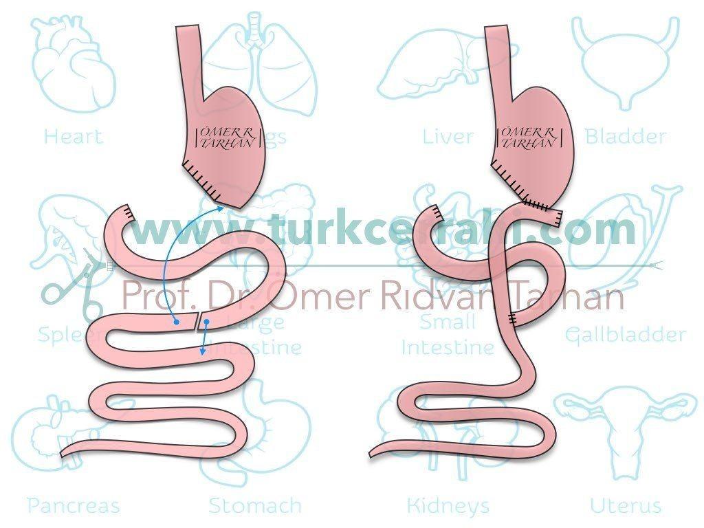 Antrektomi Roux en Y Gastrojejunostomi