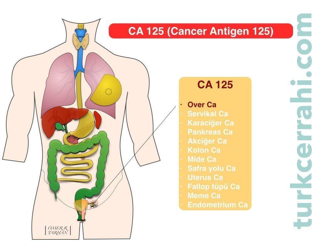 CA 125 (Kanser Antijen 125)