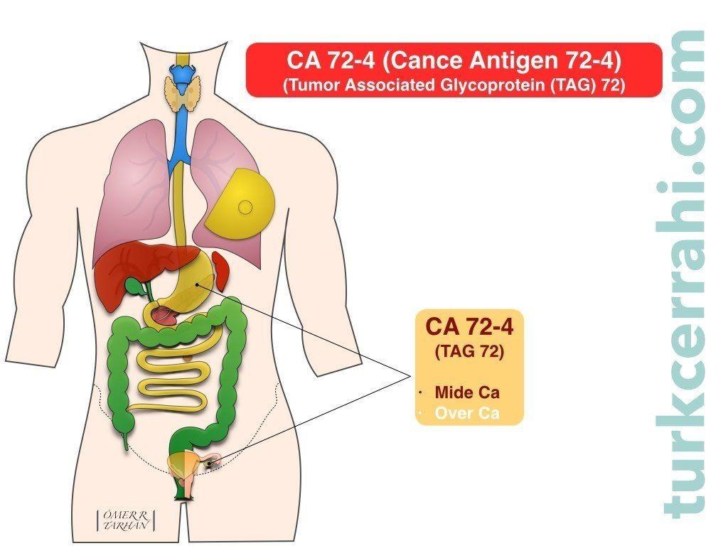CA 72-4 (Kanser Antijen 72-4 , TAG 72-4)
