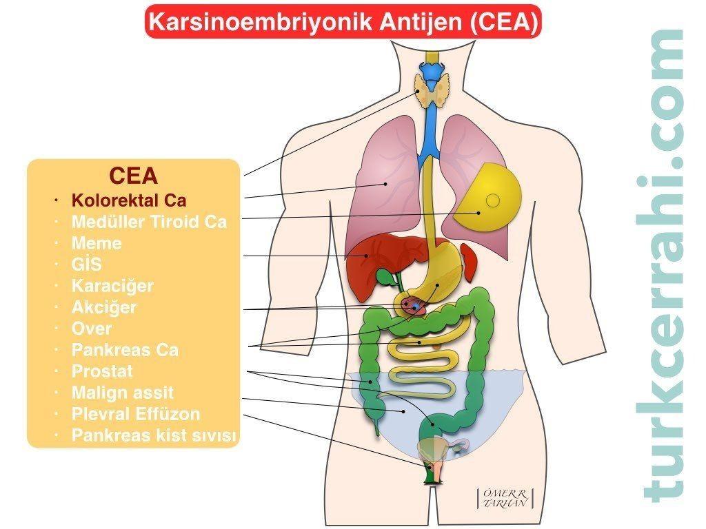 CEA (karsinoembriyonik antijen)