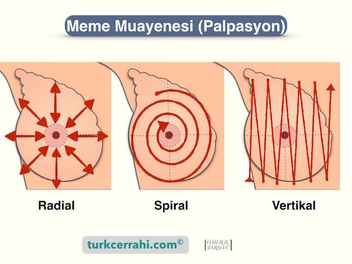 Meme Muayenesi