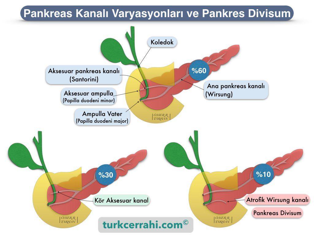 Pankreas divisum, Wirsung ve Santorini kanal varyasyonları