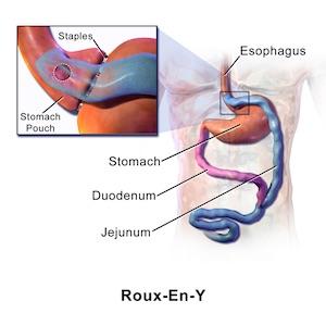 Roux-en-Y gastric bypass gastrik baypas