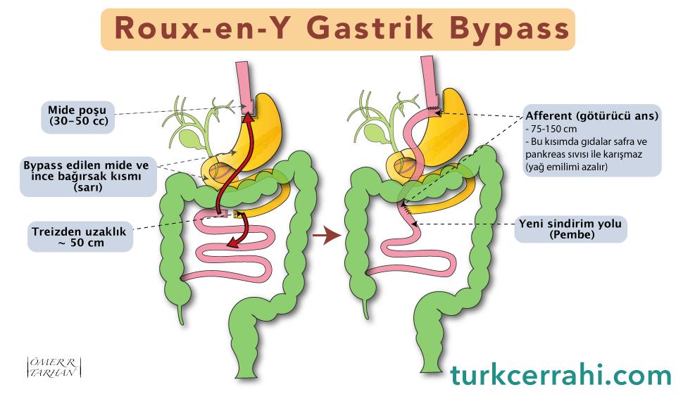 Roux en Y gastrik bypass