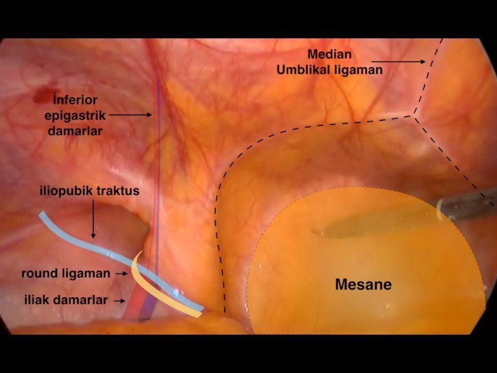 TAPP (Total Abdominal PrePeritoneal ) onarim; Anatomi