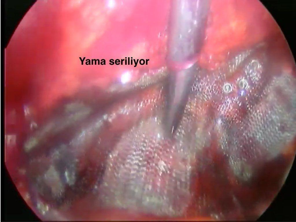 TEP Total Ekstra Peritoneal onarim yamanin serilmesi