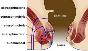 anal fistül
