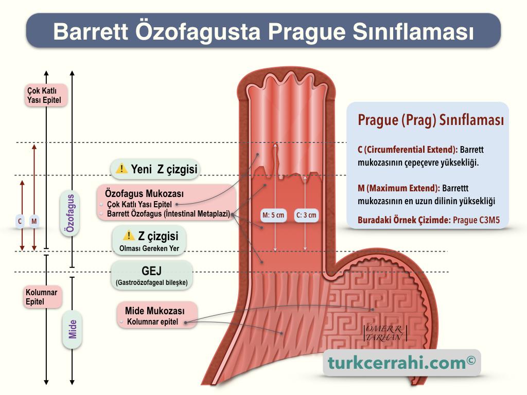 Barrrett Özofagusta Prag (Prague) Sınıflaması (Kriterleri)