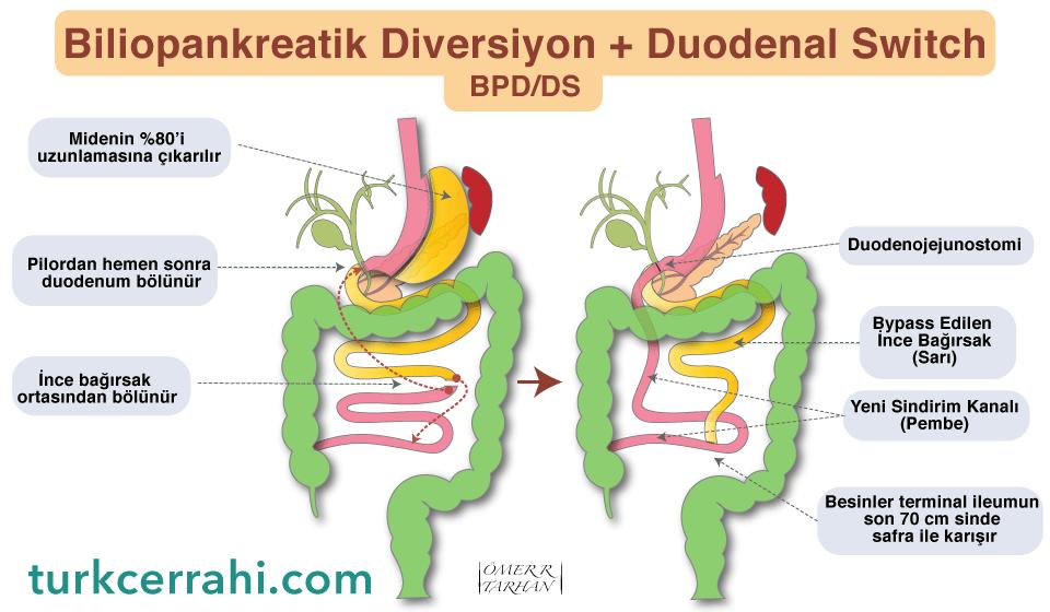 biliopankreatik diversiyon duodenal switch BPDDS