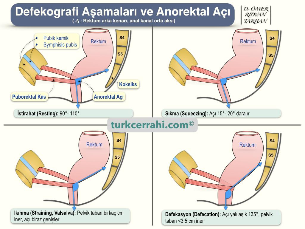Defekografi Aşamaları ve Anorektal Açı