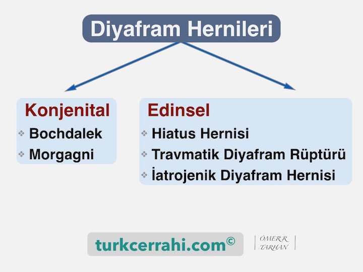 Diyfram Hernileri