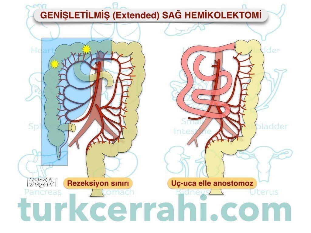 Genişletilmiş (extended) sağ hemikolektomi