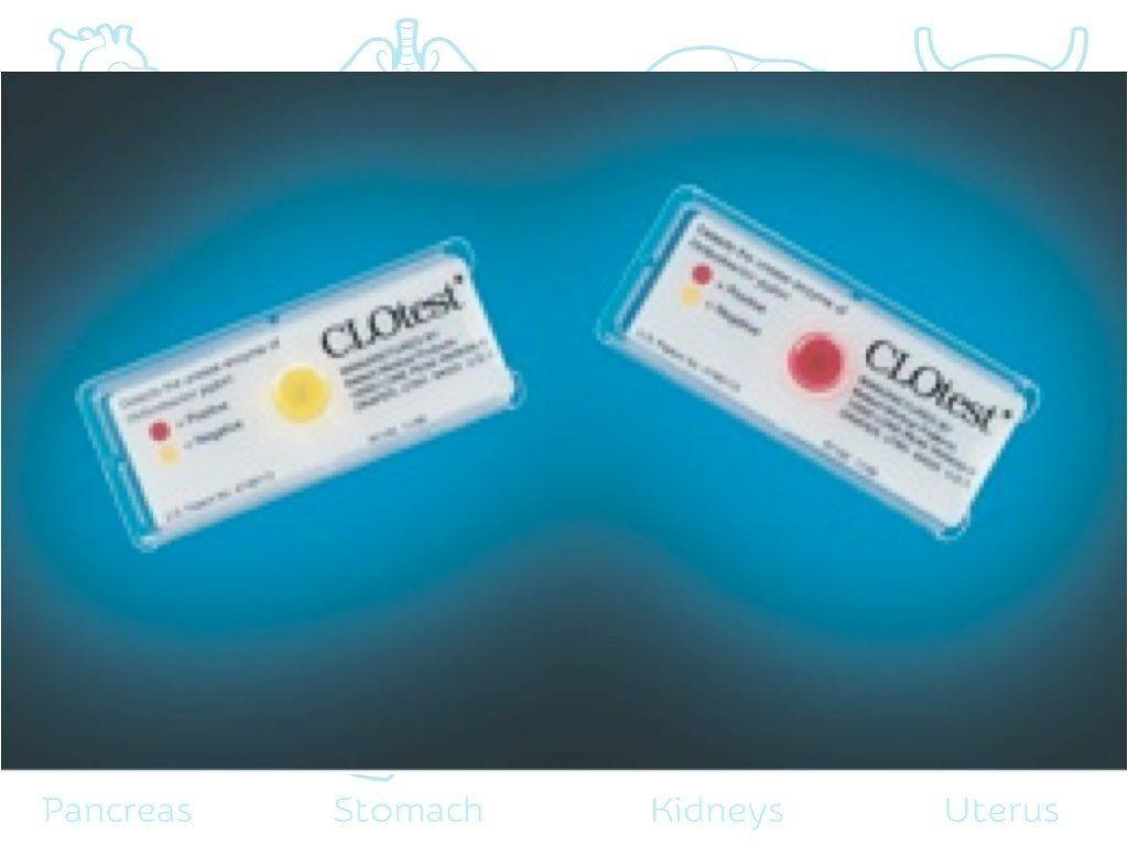Hızlı Üreaz Testi (CLO test)