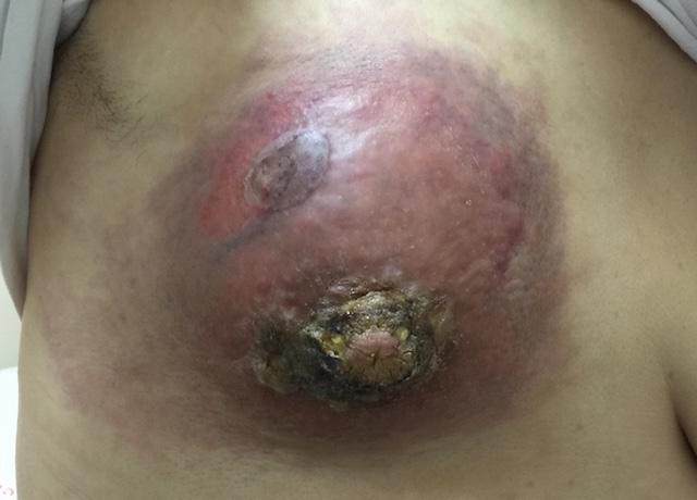 inflamatuar meme kanseri