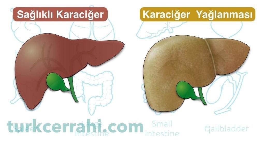 Karaciğer yağlanması hepatosteatoz