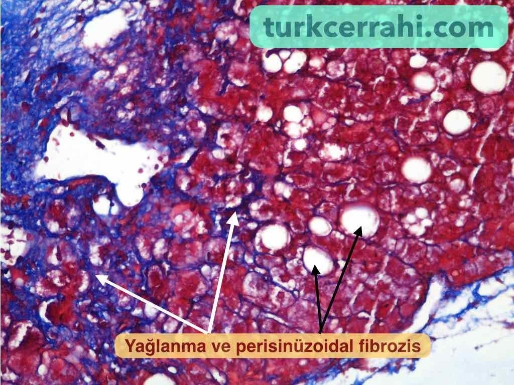 Karaciger fibrozisi (fibrozu)
