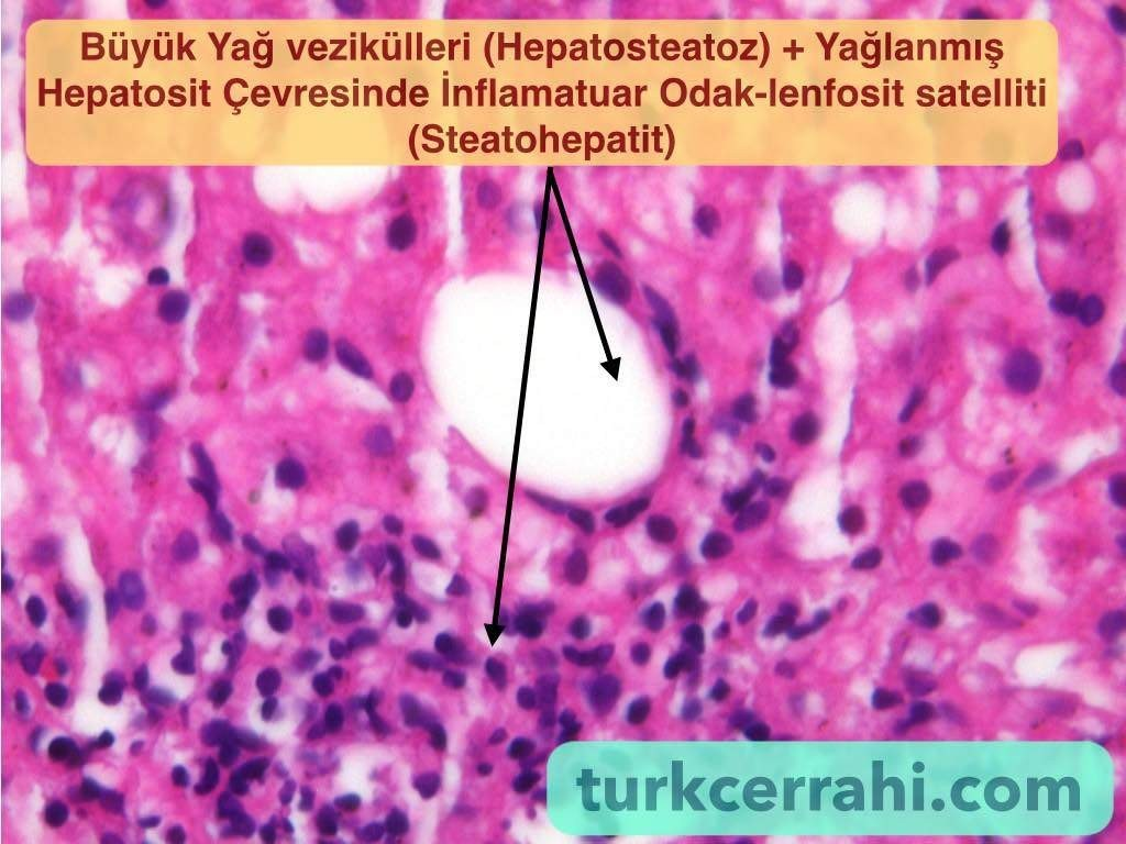 Steatohepatit
