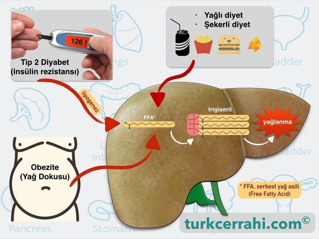 Karaciğer yağlanması nedenleri (neden olur)