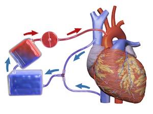 kardiopulmoner bypass baypas