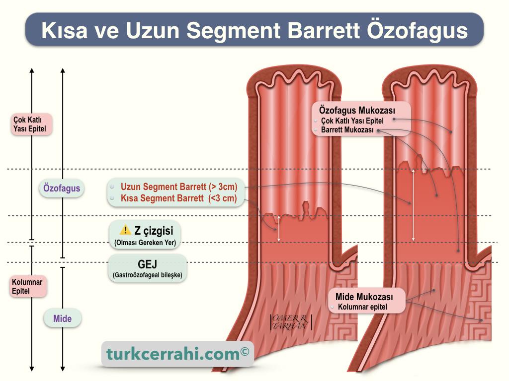 Kısa ve Uzun Segment Barrett Özofagus