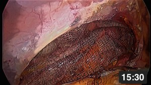 laparoskopik bilateral inguinal herni onarimi-tapp