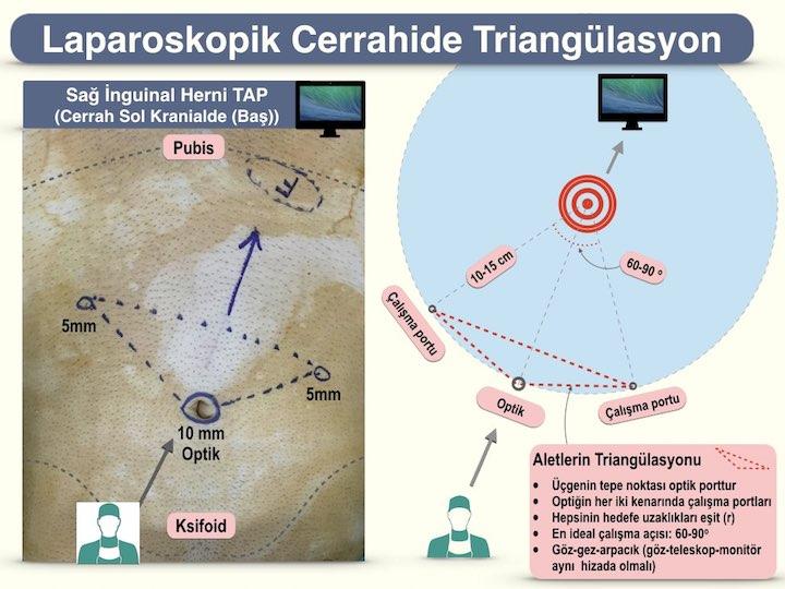 Laparoskopik cerrahide triangulasyon