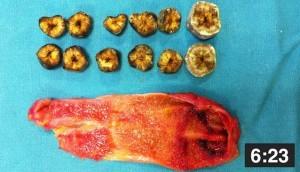 laparoskopik kolesistektomi-hook