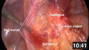 laparoskopik nissen fundoplikasyonu