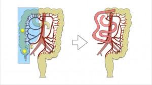 laparoskopik sag hemikolektomi