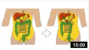 laparoskopik sol hemikolektomi