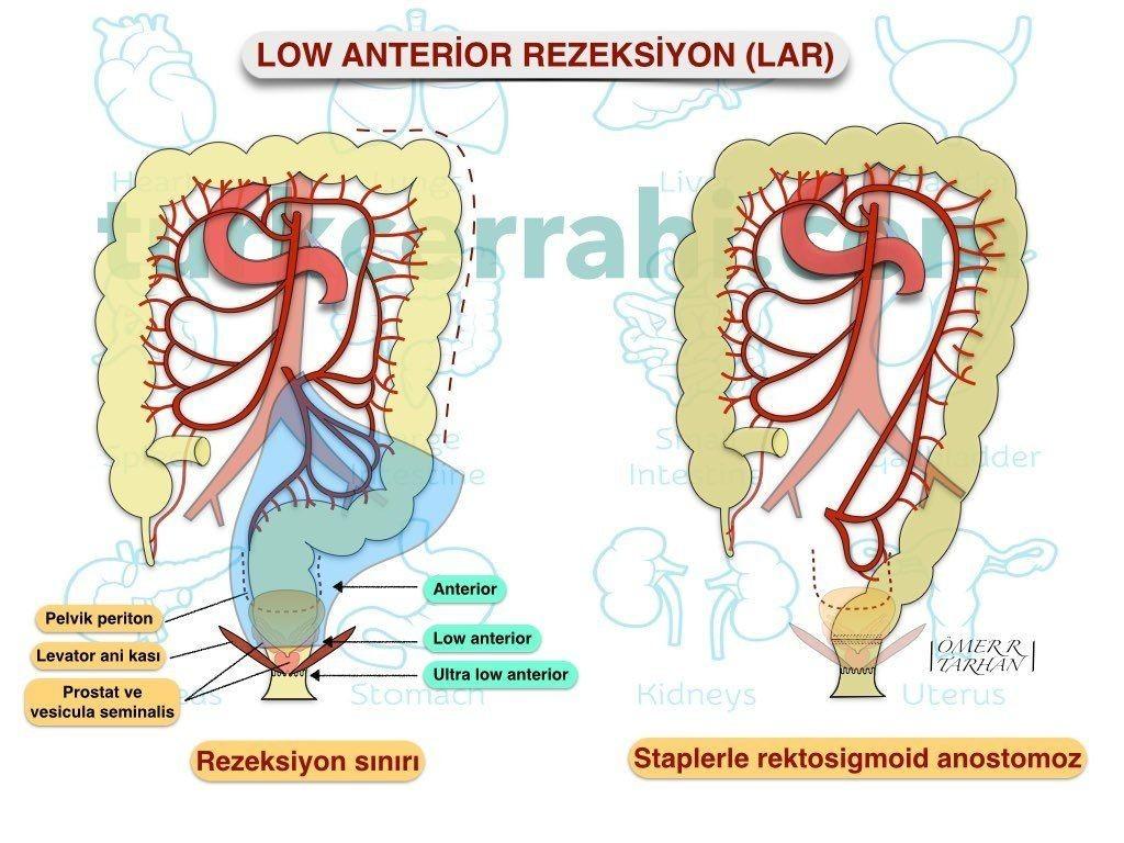 Low (aşağı) anterior rezeksiyon