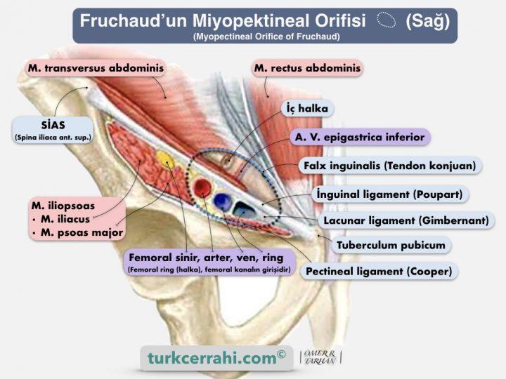 Miyopektineal orifis