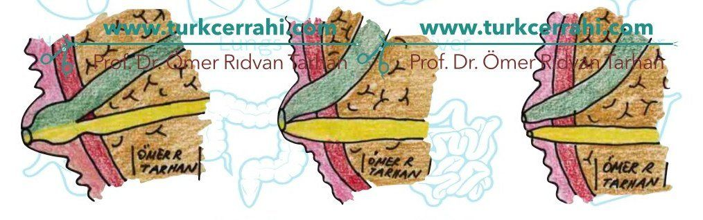Pankreas (Wirsung) kanalı ve ana safra kanali anatomisi