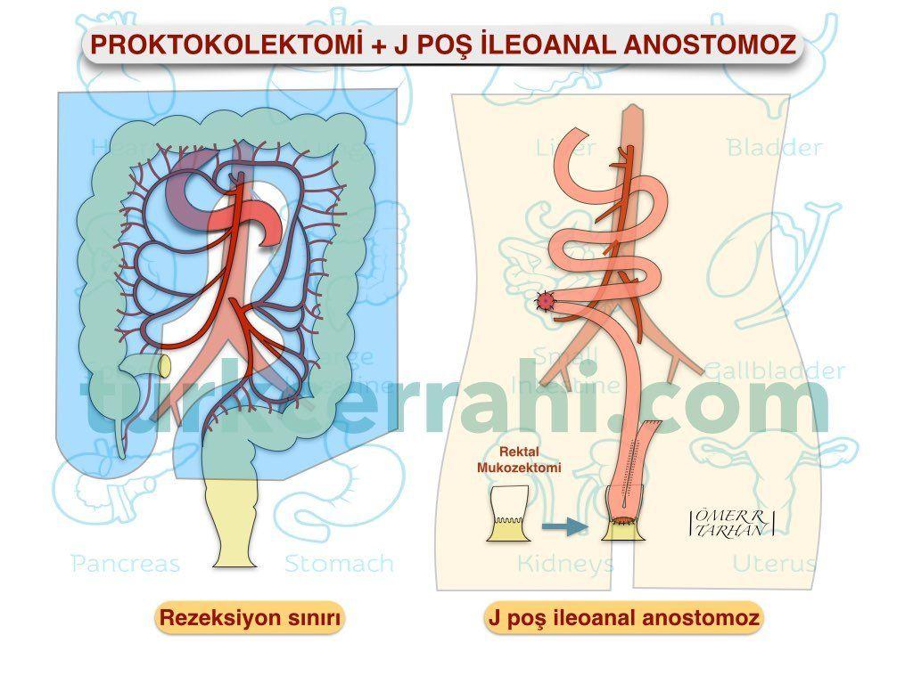 Proktokolektomi j poş ileoanal anastomoz