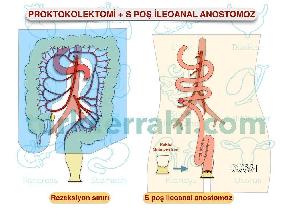 Proktokolektomi S poş ileoanal anastomoz