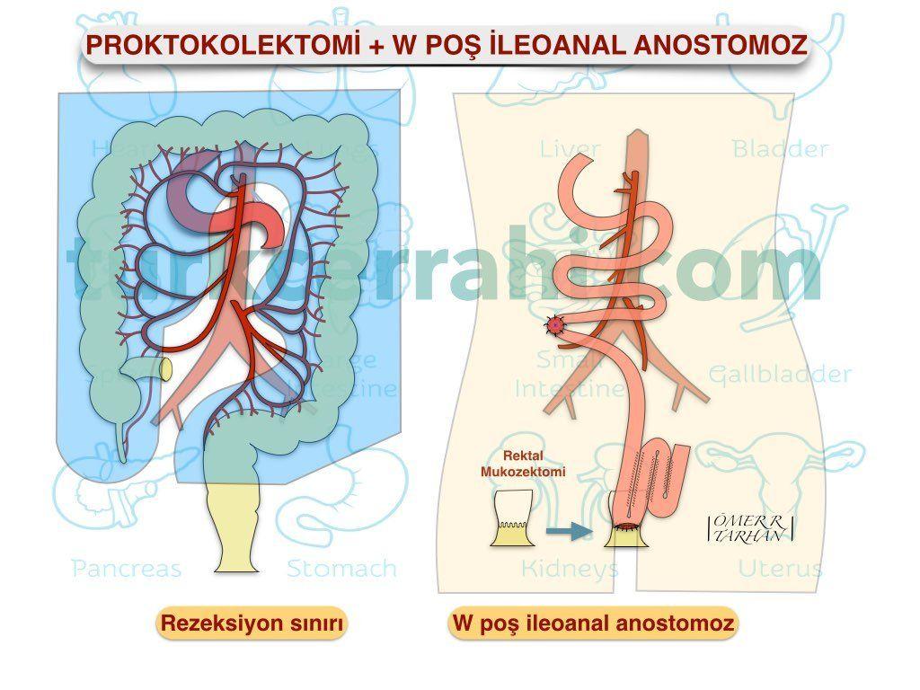 Proktokolektomi W poş ileoanal anastomoz