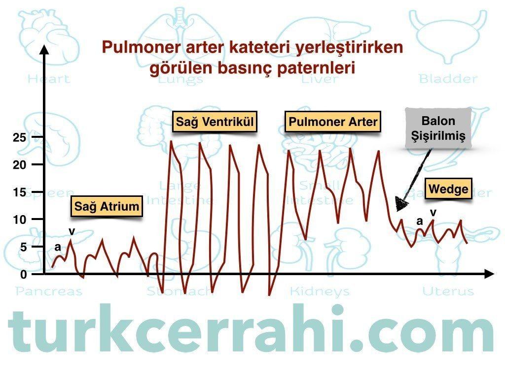 Pulmoner arter wedge basıncı nasıl ölçülür