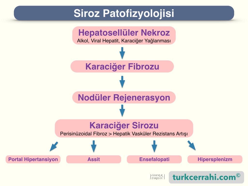 Siroz patofizyolojisi