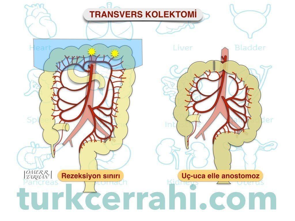Transvers kolektomi