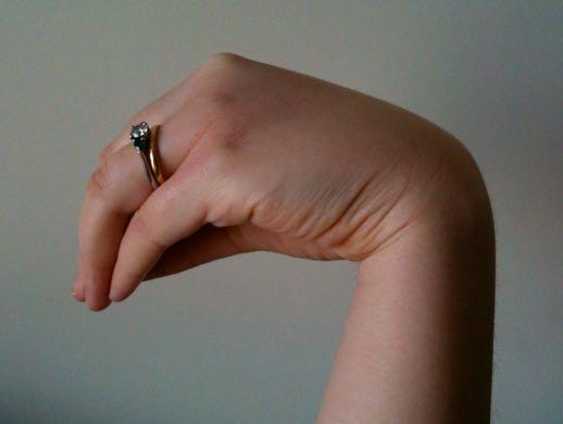 Troussau sign-bulgusu, karpopedal spazm