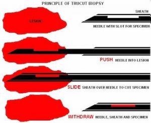 Tru cut (core) biyopsi,