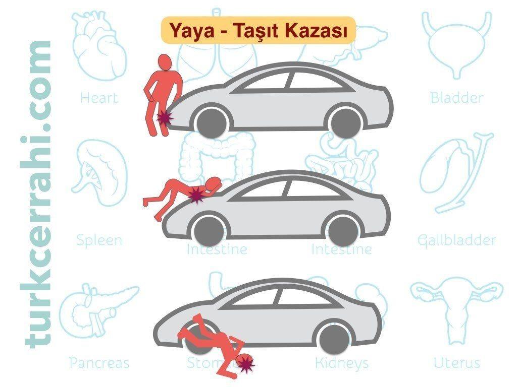 Yaya-taşıt kazası Aşamaları: 1. İlk darbe bacaklara olur 2. Arabaya yuvarlanınca gövde travmaya maruz kalır 3. Yere düşme baş ve boyun yaralanmalarına neden olur. Yetişkinler genellikle dalgınlıkla yola çıktıkları için yandan çarpma gerçekleşir. Çocuklar gelen cisme merakla bakarak yola çıktıkları için önden çarpılırlar. Yine aracın ve çarpılan kişinin boyu da travma oluş şeklini etkiler.